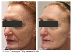 LaseMD Glo Treatment