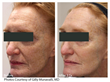 The New Lutronic LaseMD is Changing the Way Practices think About Skin Rejuvenation