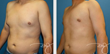 Increase in the Popularity of Male Breast Reduction Procedures Points to the Difficulties Faced by Gynecomastia Sufferers, says Dr. J Plastic Surgery