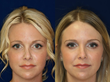 Robert Kotler, MD, FACS, Beverly Hills Rhinoplasty Superspecialist Offers a Practical, Permanent  Non-Surgical Solution for Unhappy Nose Job Patients