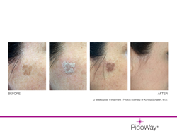 PicoWay at Lakes Dermatology, Las Vegas, NV