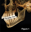 NC Periodontics and Implant Center Increases the Success of Dental Implant Placement by Offering Advanced Technology of Cone Beam (CBCT) Imaging
