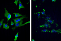 Fluorescent microscopy shows intra- and extracellular forms of the protein survivin.
