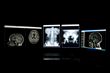 Argus Radiology Announces Expansion of Their TeleRadiology Services into Georgia
