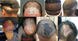 Buyer Beware: Warning of Unlicensed Hair Restoration Services: Technicians & Assistants Illegally Performing FUE and FUT Hair Transplant Surgery