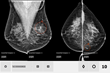 ScreenPoint Closes Series B Investment Round to Accelerate Growth and Commercialization of Its AI Product Transpara for Improving Mammogram Reading