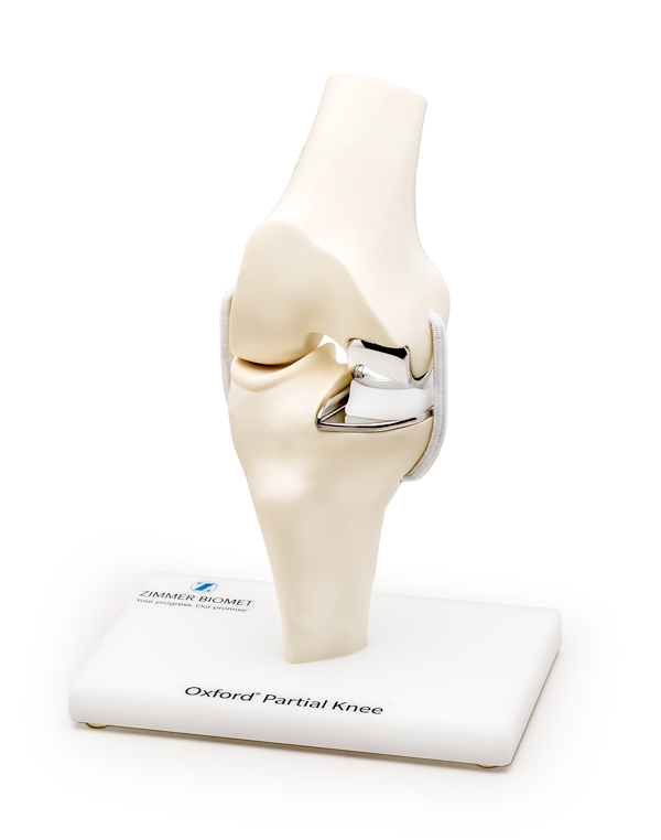 New Advancements in Knee Surgery Offer Options to Stop Knee Pain