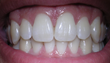 Receding Gums are One of Many Reasons to Book an Immediate Dentist Appointment, says A-Z Dental Care