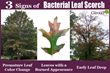 Bacterial Leaf Scorch Has Infected Many Oak Trees in the Philadelphia Area and Giroud Tree and Lawn Share 3 Signs of Bacterial Leaf Scorch to Look for in Oaks