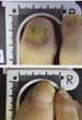 "CBS's ""The Doctors"" Showcases the Remarkable Lunula Laser as a Solution for Nail Fungus"