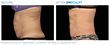 Fusion Medical Spa Introduces Groundbreaking EMSCULPT® Body Shaping Technology That Goes Beyond Circumferential Reduction