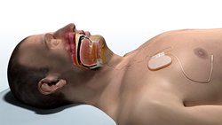 Image of Inspire® Upper Airway Stimulation therapy