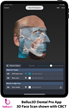 Bellus3D Announces Dental Pro 3D Face Scanning App