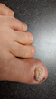 Vitalité Med Spa Offers Novel Treatment of Toenail Fungus with Noveon Laser and Thyroid Replacement