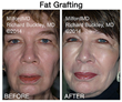Cosmetic Surgeon Dr. Richard E. Buckley of MilfordMD Cosmetic Dermatology Surgery & Laser Center in Milford, PA, Talks About All That's New in Facial Fat Injecting