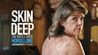 The Charles E. Holman Morgellons Disease Foundation Announces The Release of Skin Deep: The Battle Over Morgellons