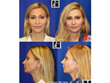 Dr. Jay Calvert, Beverly Hills Plastic Surgeon, gives holiday tips on how new Revision Rhinoplasty techniques may make your season brighter.