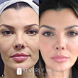 "Ali Landry, founder of RE/SHAPE, Appears on ""The Doctors"" to Share How Regenerative Cell Therapy From Beverly Hills Rejuvenation Center® Has Helped Her Retain Her Youth"