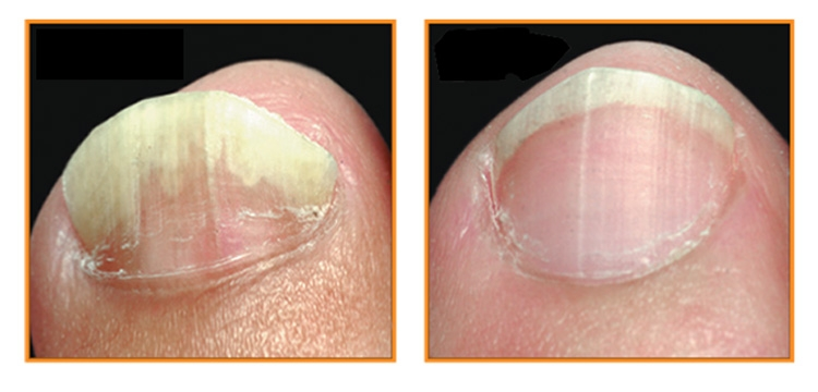 Before And After Using NonyX Nail GelNonyX Gel For Clear Healthy Looking Nails