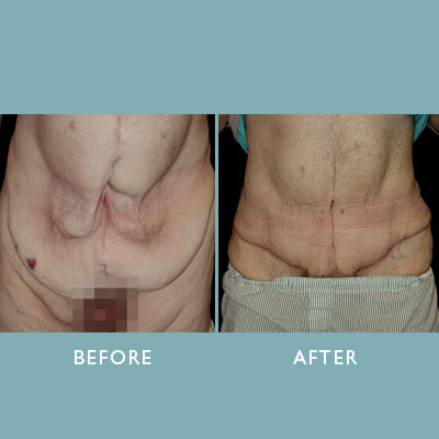 Noted Plastic Surgeon Sees Rising Trend In Body Contouring Surgery