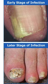 Stages Of Nail Fungal InfectionsNail Infections Onychomycosis