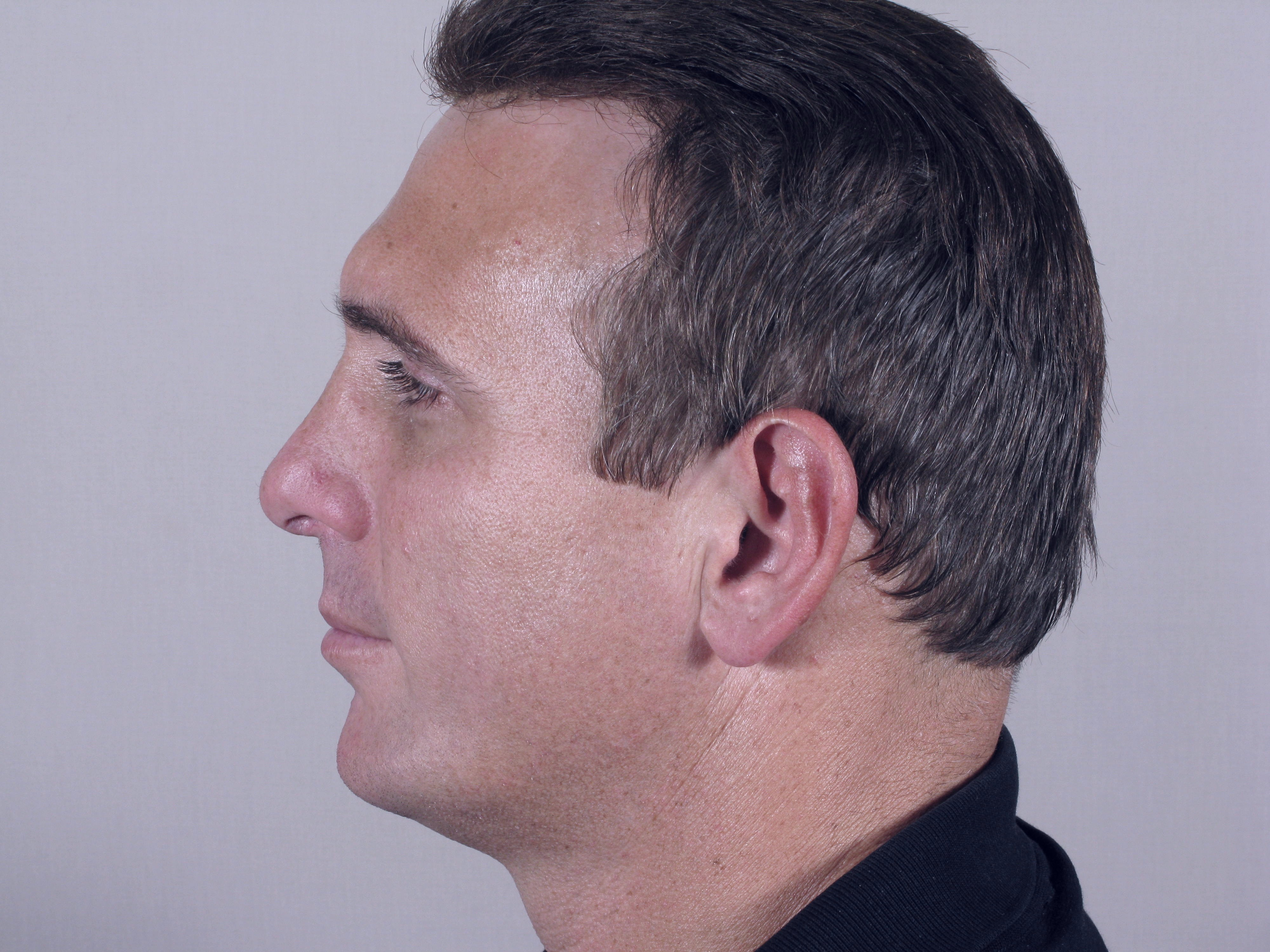 форма мужского лба надбровные дуги фото накануне