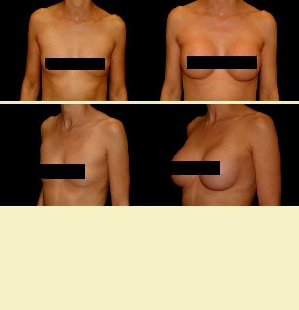 Breast Enhancement Pittsburgh Pittsburgh Cosmetic Surgery Breast  Augmentation Pittsburgh ...