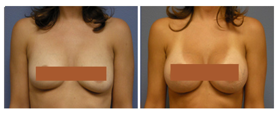 Breast augmentation salt lake city utah