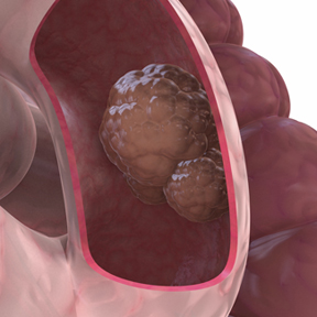 Inoperable Colon Cancer Resolved After Four Months Of New Treatment