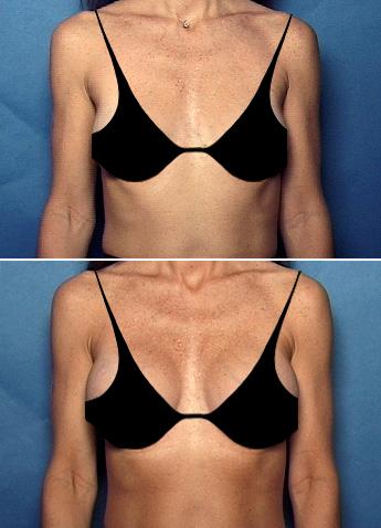fetch info augmentation Breast site