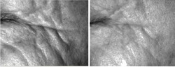 TriPollar wrinkles reduction results
