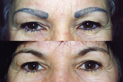 New Eyebrow Tattoo Removal Video Demonstrates Tattoo Laser ...