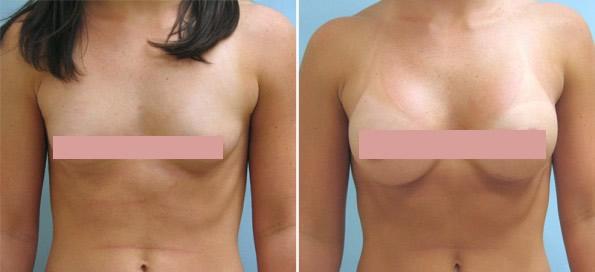 Breast enhancement doctor georgia