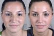 Rhinoplasty New Jersey Patient Image from Parker Center for Plastic Surgery