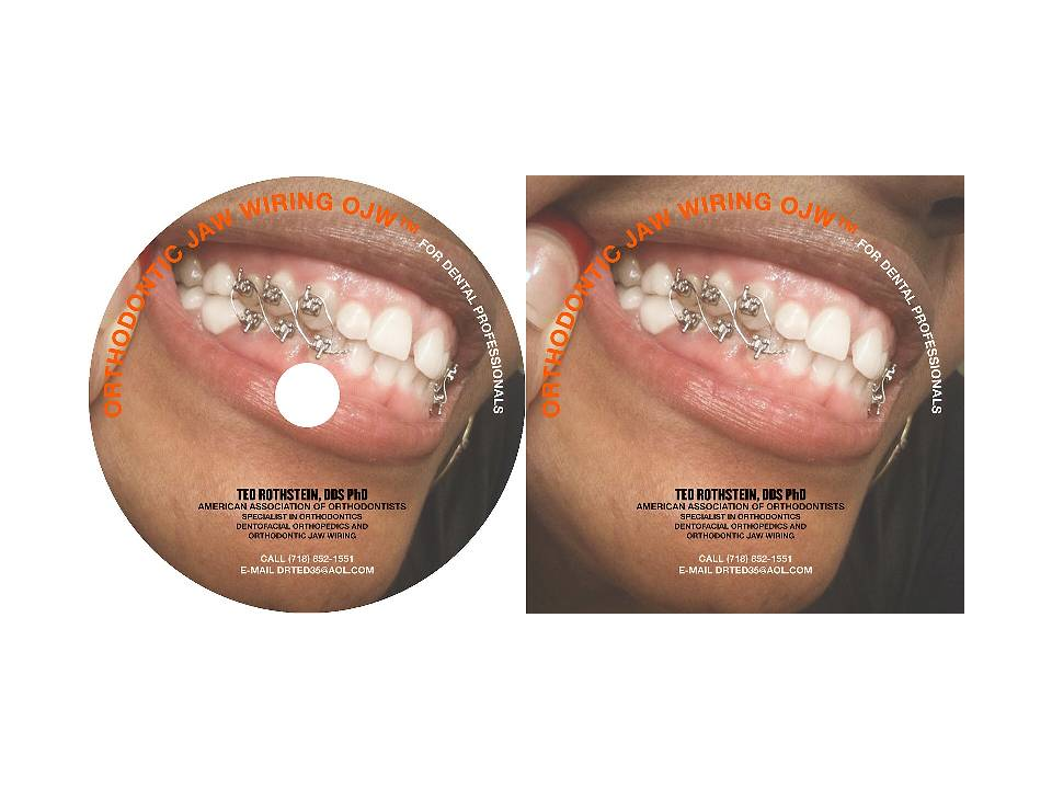 Wondrous Brooklyn Orthodontist Dr Ted Rothstein Announces Forthcoming Wiring 101 Orsalhahutechinfo