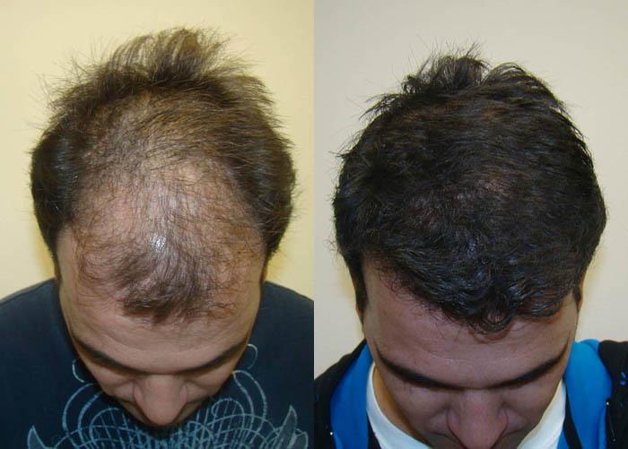Maxharvest Pioneer Is Experiencing Extraordinary International Hair