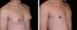 .Before and After