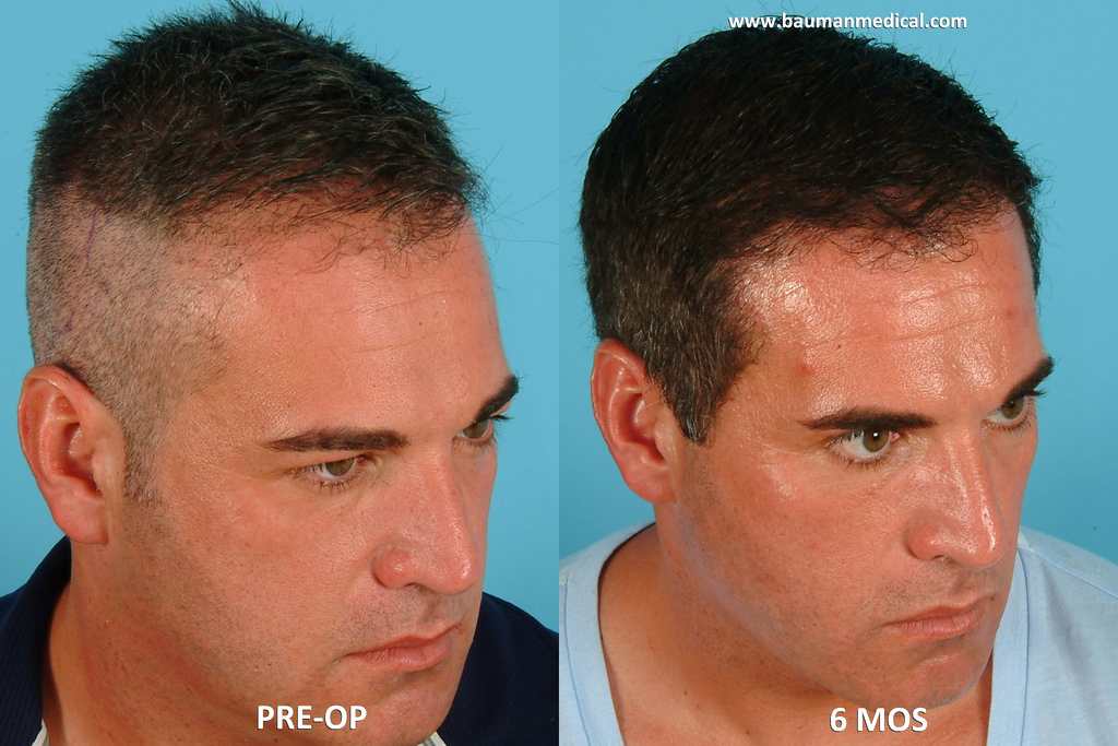 First Live Hair Transplant On Youtube