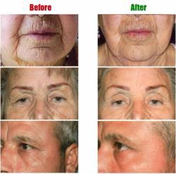 Event Os Skin Care