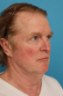facial, rejuvenation, before, photo, angle, rhode, island