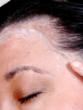 View of APS Resistance Protective Creme as applied along hairline