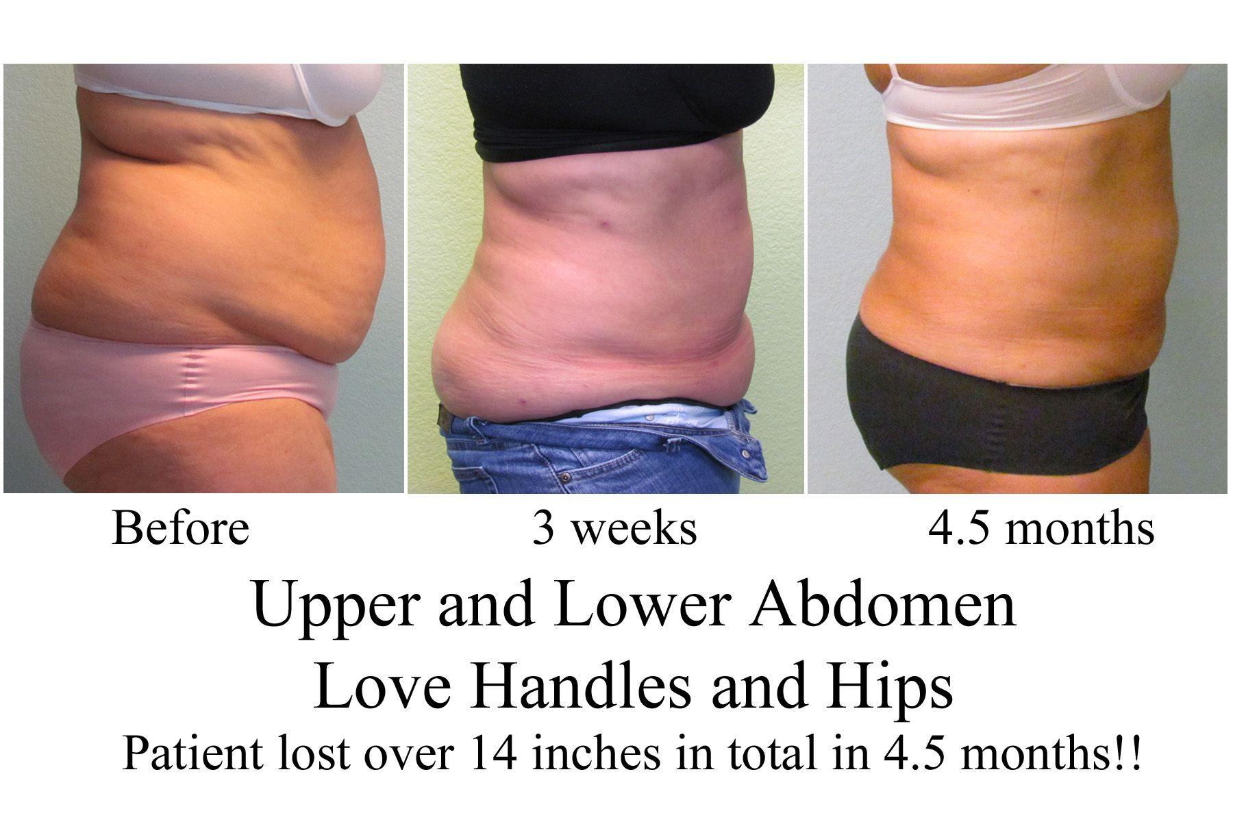 Abdomen Liposuction Healing Process ...