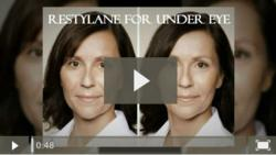 Video of Restylane treatment for under eye hollows