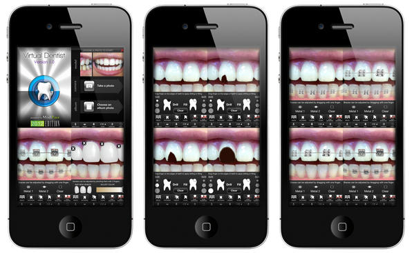 virtual dentist dental simulation app becomes the 1 ranked iphone