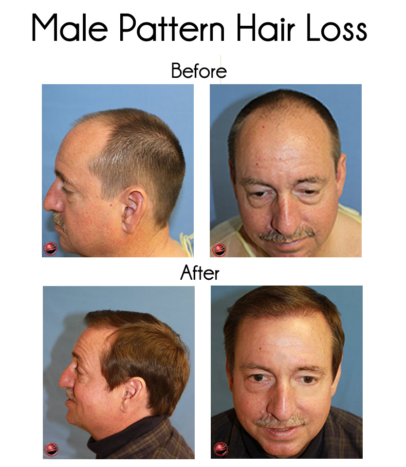 Thyroid Hair Loss Pattern Magnificent Inspiration Design