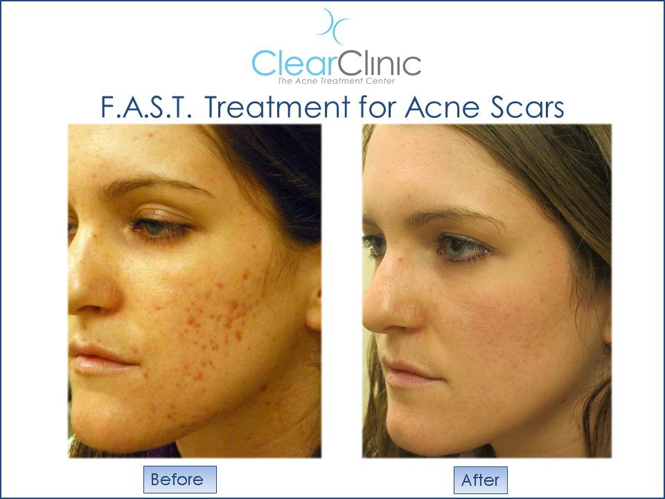 Acne cure naturally to overnight How