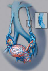 Pelvic Congestion Syndrome, Heartland Vein & Vascular Institute, Dr. Thomas Whittle Vein Expert