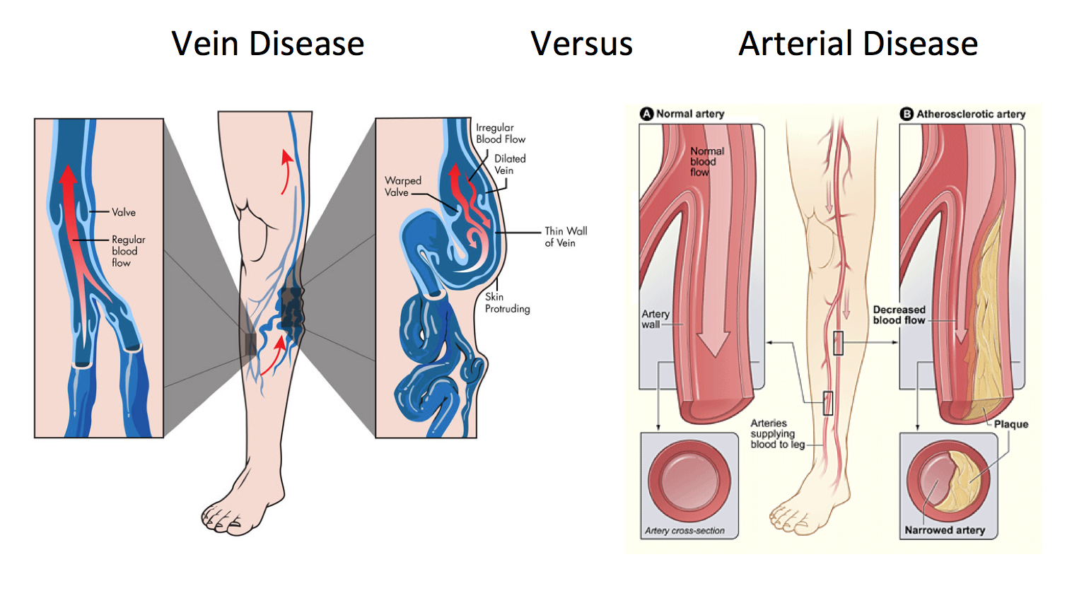 New York Vein Treatment Center Discuses Vein Diseases Vs  Arterial Diseases In A Newly Published