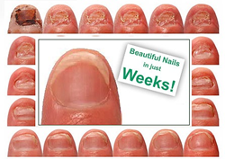 How To Get Rid Of Fingernail Fungus Fast At Home - Best Nail ...