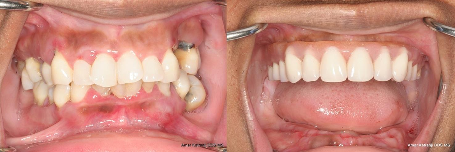 Detroit Dental Implant Dentist Provides Denture Alternative